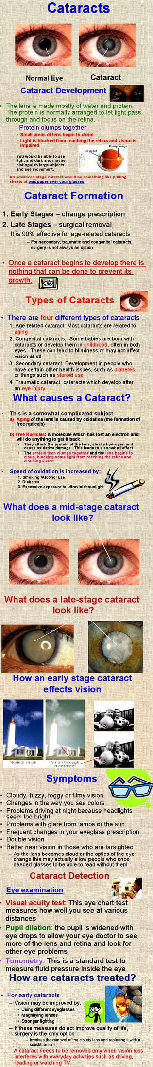 Infographic cataract